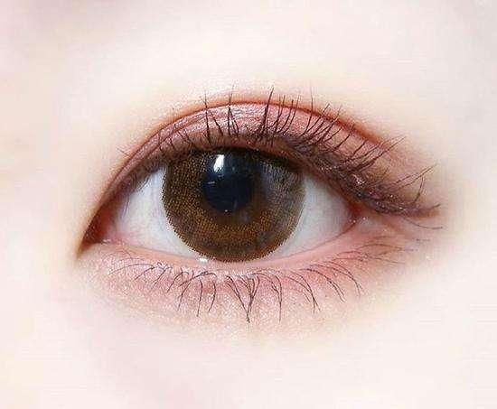 双眼皮如何来做几好看又安全
