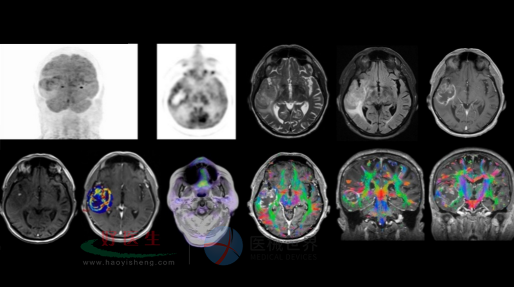 恶性脑胶质瘤.png