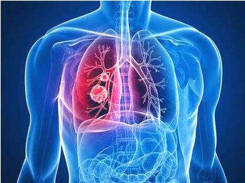 肺癌.jpg