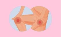 招募类风湿关节炎患者||JAK抑制剂