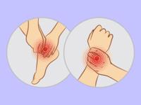 招募中重度活动性类风湿关节炎患者||LZM008