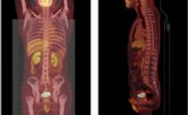 左肺病变PETCT检查案例-全国PETCT/MR(核磁)检查预约网-癌症筛查-肿瘤复查-高端体检
