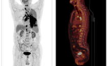 肺部病灶PETCT检查案例-全国PETCT/MR(核磁)检查预约网-癌症筛查-肿瘤复查-高端体检