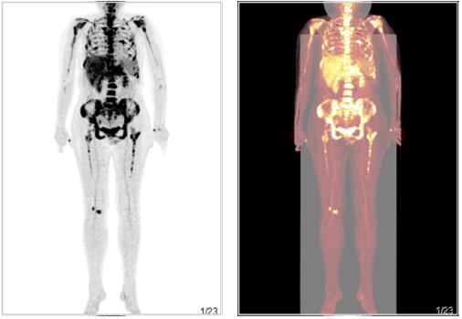 胆管细胞癌.png
