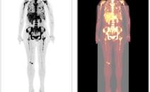 胆管细胞癌治疗后复查PETCT检查案例-海豚大夫聚焦超声肿瘤微创咨询平台