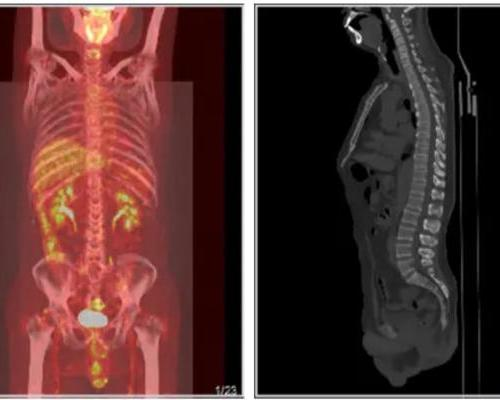 乙状结肠腺癌术后复查,做PETCT检查案例--海豚大夫聚焦超声肿瘤微创咨询平台