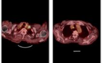 吞咽困难难伴声嘶半月,食管癌做PETCT检查案例-海豚大夫聚焦超声肿瘤微创咨询平台