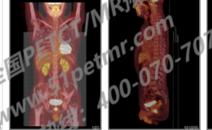 癌症筛查-PETCT/MR检查案例-PETCT/MR(核磁)检查预约平台