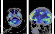 颅内占位伴出血PETCT检查案例-PETCT/MR检查案例-PETCT/MR(核磁)检查预约平台