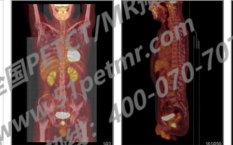 患者因咳嗽就诊于当地医院行肺部CT示右下肺结节-PETCT/MR检查案例-PETCT/MR(核磁)检查预约平台
