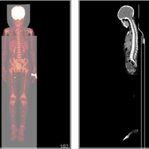 淋巴瘤治疗后复查,做PETCT检查-全国PETCT/MR检查预约网-癌症筛查-肿瘤复查-高端体检