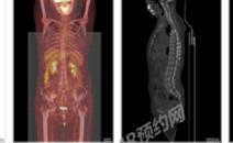 肺部结节,做PETCT检查案例-全国PETCT/MR检查预约网-癌症筛查-肿瘤复查-高端体检