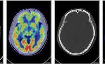 癌症筛查,做PETCT检查案例-全国PETCT/MR检查预约网-癌症筛查-肿瘤复查-高端体检