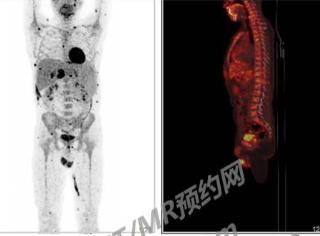 淋巴瘤治疗后复查,做PETCT检查案例-PETCT/MR(核磁)检查预约网