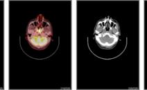鼻咽癌,做PETCT检查案例-海豚大夫聚焦超声肿瘤微创咨询平台
