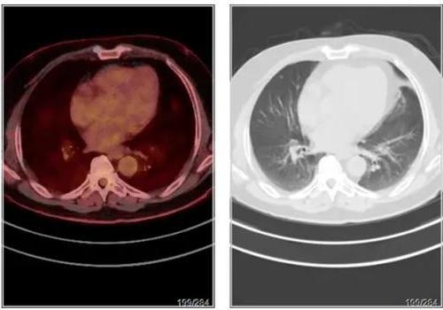 贲门胃底癌,中分化腺癌,做PETCT检查案例-海豚大夫聚焦超声肿瘤微创咨询平台