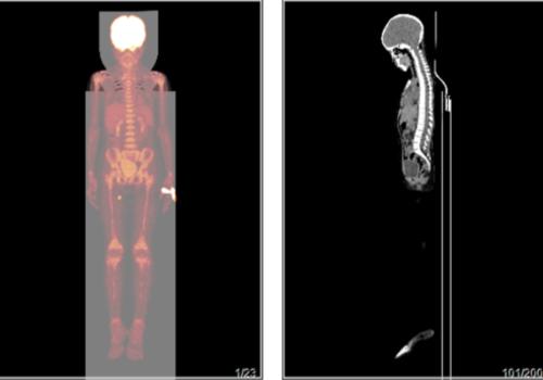 淋巴瘤治疗后复查,做PETCT检查-海豚大夫聚焦超声肿瘤微创咨询平台