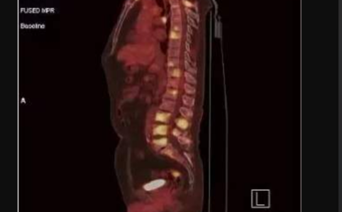 健康体检,癌症筛查-PETCT检查案例-PETCT/MR检查案例-PETCT/MR(核磁)检查预约平台