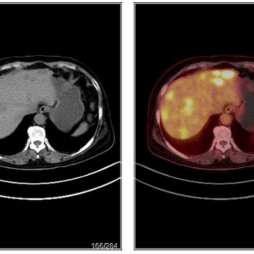 乳腺癌术后,复查PETCT检查案例