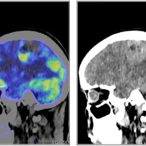颅内占位伴出血PETCT检查案例