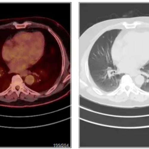 贲门胃底癌,中分化腺癌,做PETCT检查案例