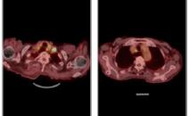 吞咽困难难伴声嘶半月,食管癌做PETCT检查案例