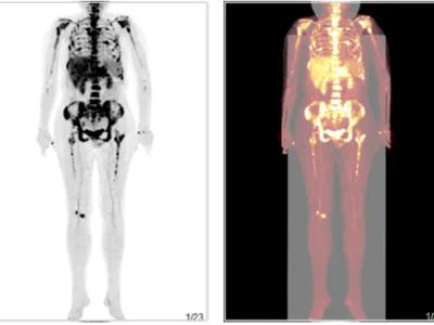胆管细胞癌治疗后复查PETCT检查案例