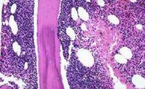 血液淋巴瘤治疗评估-PETCT检查案例