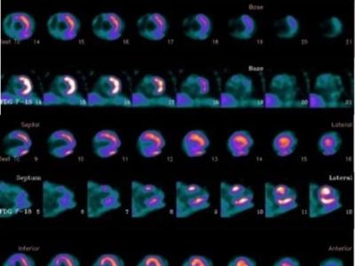 双核素显像在心脏结节病中的应用-PETCT检查案例