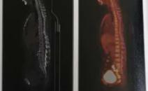 CT提示左上肺舌段及左下肺斑片影,做PETCT检查详查一下
