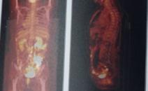 宫颈癌术后,右下腹区疼痛,做PETCT检查