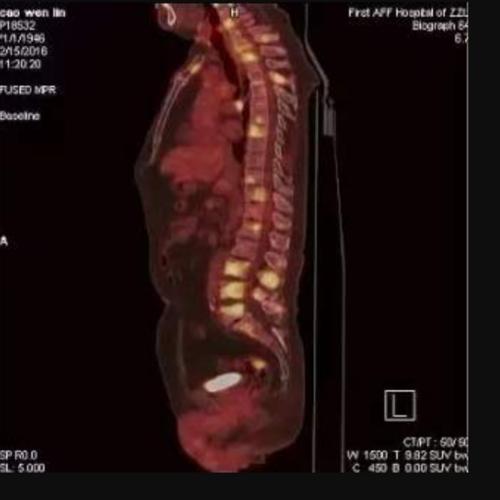 便血怀疑结肠癌-PETCT检查案例