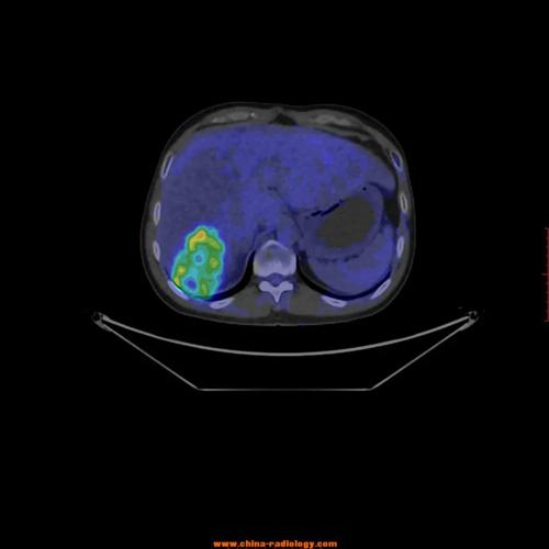 肝右后叶恶性肿瘤肾转移-PETCT检查案例