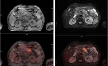 胸部不适1月余就诊,CT 提示双肺弥漫性病变,可疑癌性淋巴管炎