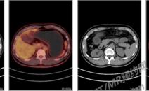 左肺病变PETCT检查案例