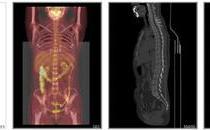 右腹阵发性疼痛数年做PETCT检查详查案例