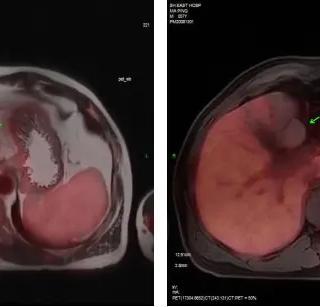 肾功能出现障碍,做PETMR检查详查原因-全国PETCT/MR检查预约网_癌症筛查_肿瘤复查_高端体检