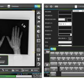 數字X射線成像裝置