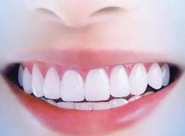 2022上海美博会推荐牙齿变白的方法