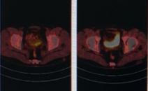 体检CA199指标高,做PETCT进一步详查-全国PETCT/MR检查预约网_癌症筛查_肿瘤复查_高端体检