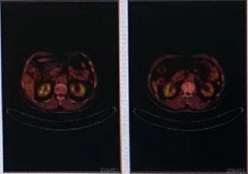 身体不适,PETCT全身检查-全国PETCT/MR检查预约网_癌症筛查_肿瘤复查_高端体检