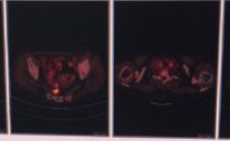 淋巴瘤治疗后做PETCT检查