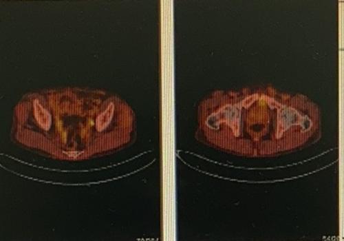 直肠癌术后复查做PETCT检查