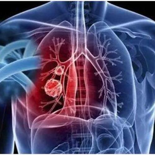发现了肺结节,要确诊肺癌,是做穿刺活检还是PET-CT