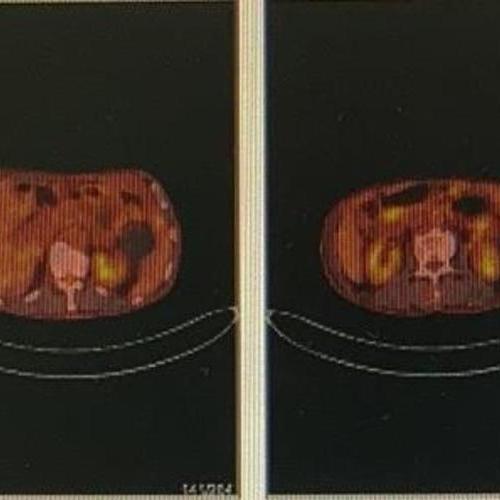 贲门癌治疗后PETCT检查