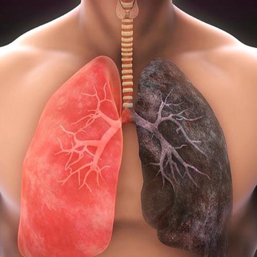 肺部出现结节会经历3个阶段,每个阶段都在给你机会,望你把握住...