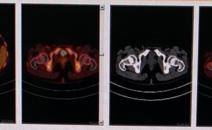 脾脏骨髓弥漫性FDG代谢增高做PETCT检查