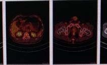 肺癌治疗后复查做PETCT检查