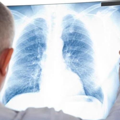 肺结节分为3个阶段,医生建议:养护肺部,日常尽量做好两件事