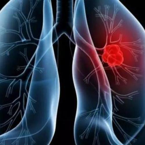 如果家里有亲戚得了肺癌,你会不会也得肺癌呢?其实不用担心...